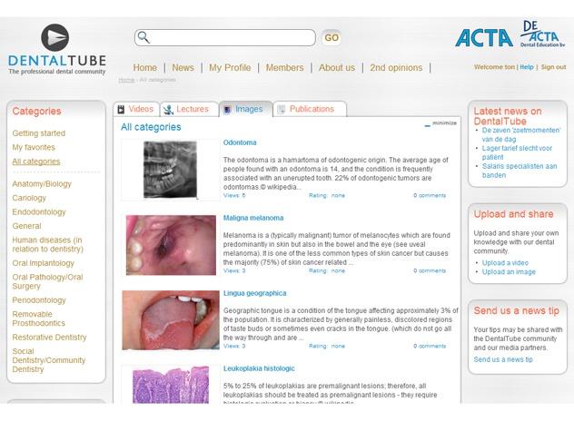 Overzicht afbeedlingen DentalTube